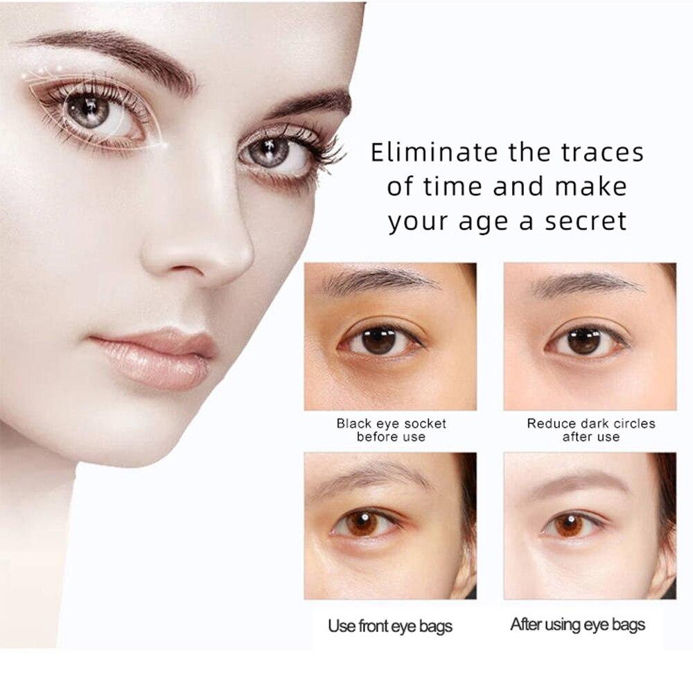 Anti-Ageing Wrinkle Eye Massager  5