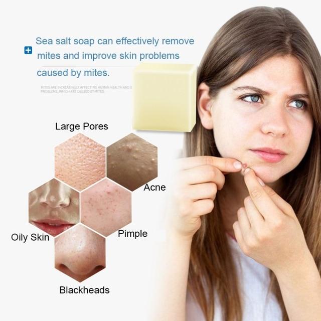 LAIKOU Sea Salt Soap Cleaner Oil Control  Removal Pimple Pore Acne Treatment Blackhead Remover Goat Milk Moisturizing Soap 1