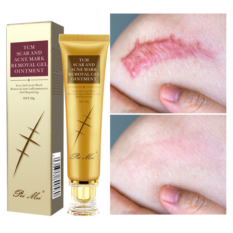 Acne Scar Removal Cream Gel Face Pimples Stretch Marks Cream Repairing Smoothing Whitening Moisturizing Body Cream Skin Care 30g-0