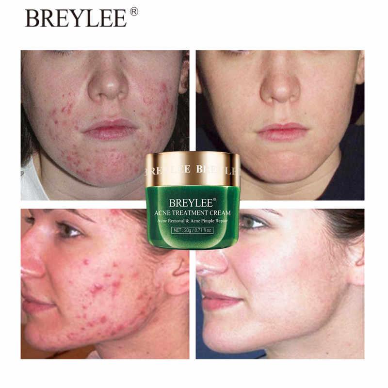 BREYLEE pielęgnacja skóry maska na twarz trądzik pryszcz łatka leczenie trądziku naklejki środek usuwający pryszcze narzędzie skazy Spot wodoodporne 22 łatki