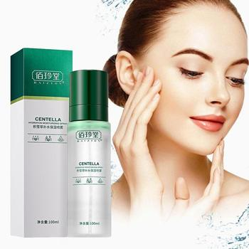 100ml Face Spraying Moisturizing Spraying Toner Oil And Essentials Acne Nature Acne Skin Treatment Toner Oil-Control D4N7 nature republic 150ml face toner soothing