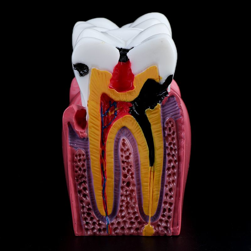 6 Times Dental Caries Comparation Anatomy Teeth Model for Dental Anatomy Lab Teaching Studying Researching Tool in Medical Science from Office School Supplies