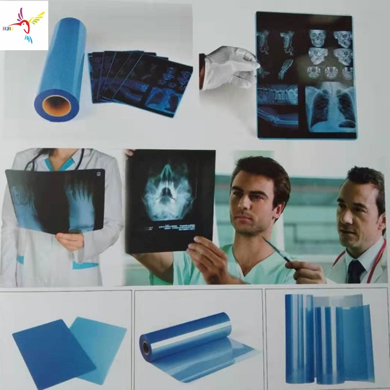 175 Microns Blue Inkjet Medical Film For EPSON CANON HP And All Kinds Of Inkjet Printer Used As  X-ray CT CR DR MR And PET-CT