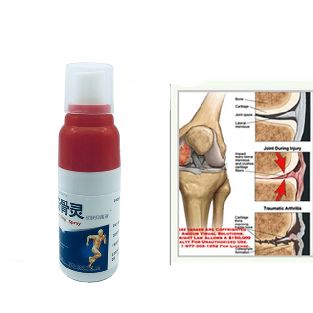 Athritis Pain Spray
