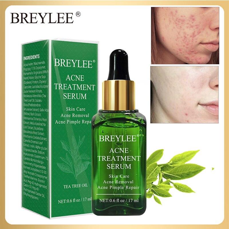 BREYLEE 17ml Acne Removal Facial Serum Pimple Treatment Face Essence Minimizer Shrink Pore Whitening Smooth Skin Care Repair
