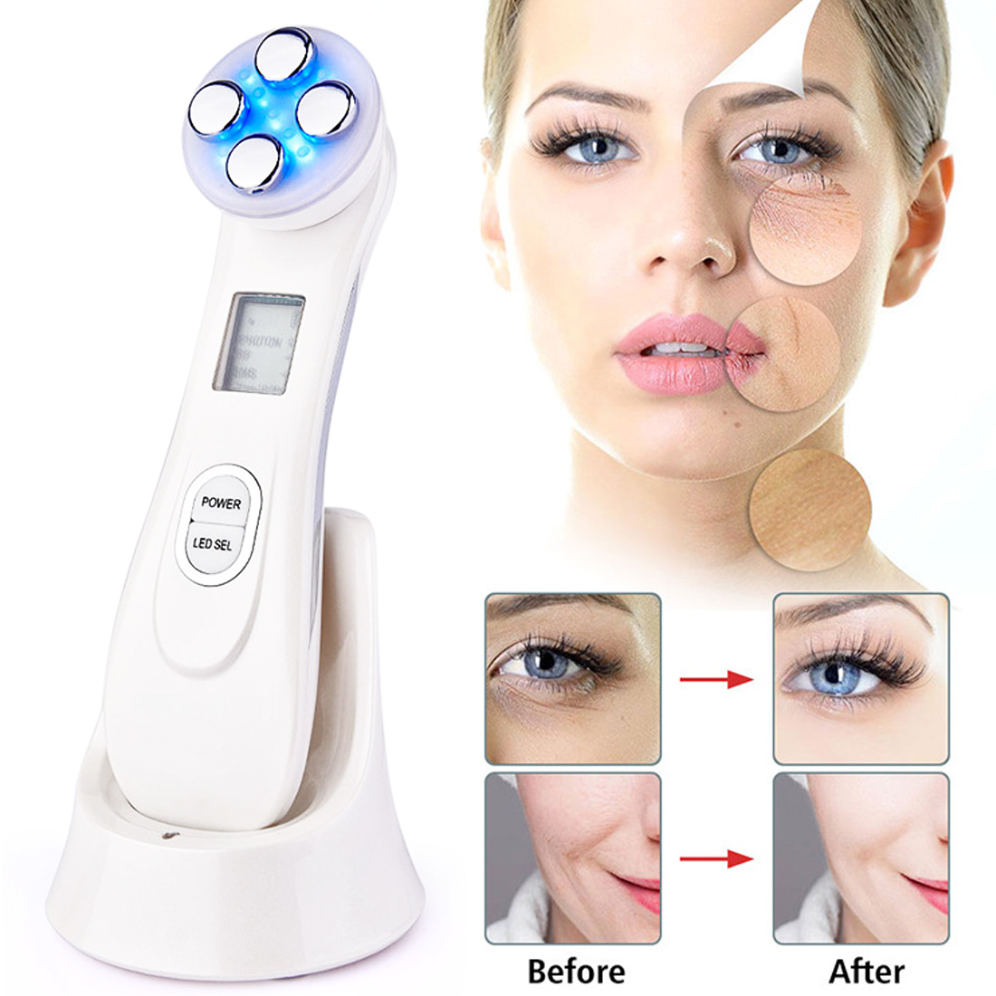 Face Skin EMS Mesotherapy Electroporation RF Radio Frequency LED Photon Face Skin Rejuvenation Remover Wrinkle With Gel