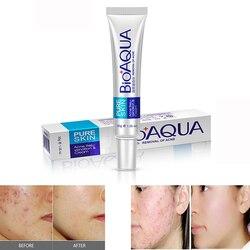 30g Acne Treatment Blackhead Removal Anti Acne Cream Oil Control Shrink Pores Acne Scar Remover Face Care Whitening