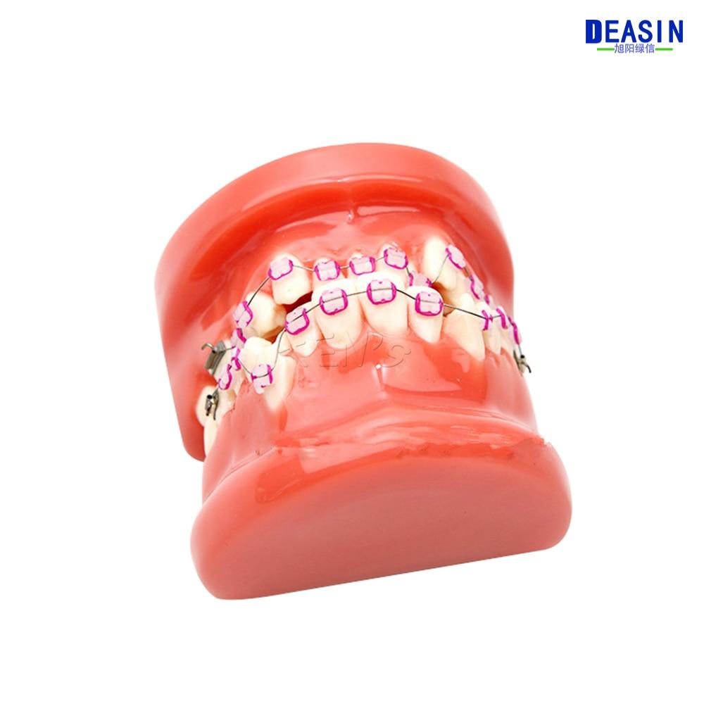 龅牙 (9)