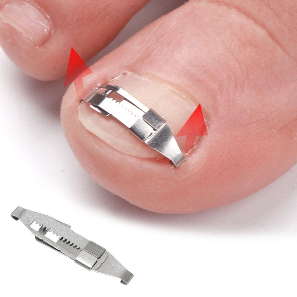 Ingrown Toenail Corrector Toenail Correction Treatment Corrector Foot Embed Orthotic Tools Nail Tool Fixer Recover Pedicure S1H3