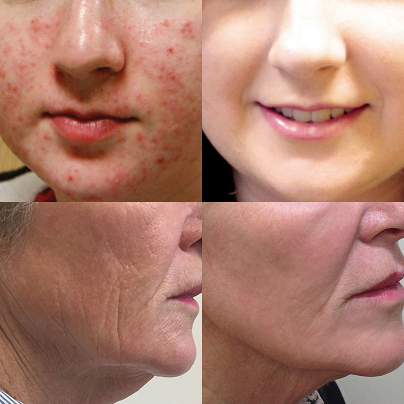 Hot sale Pure Vitamin C Hyaluronic Acid Essence Anti-aging Firming Brightening Skin Care Liquid