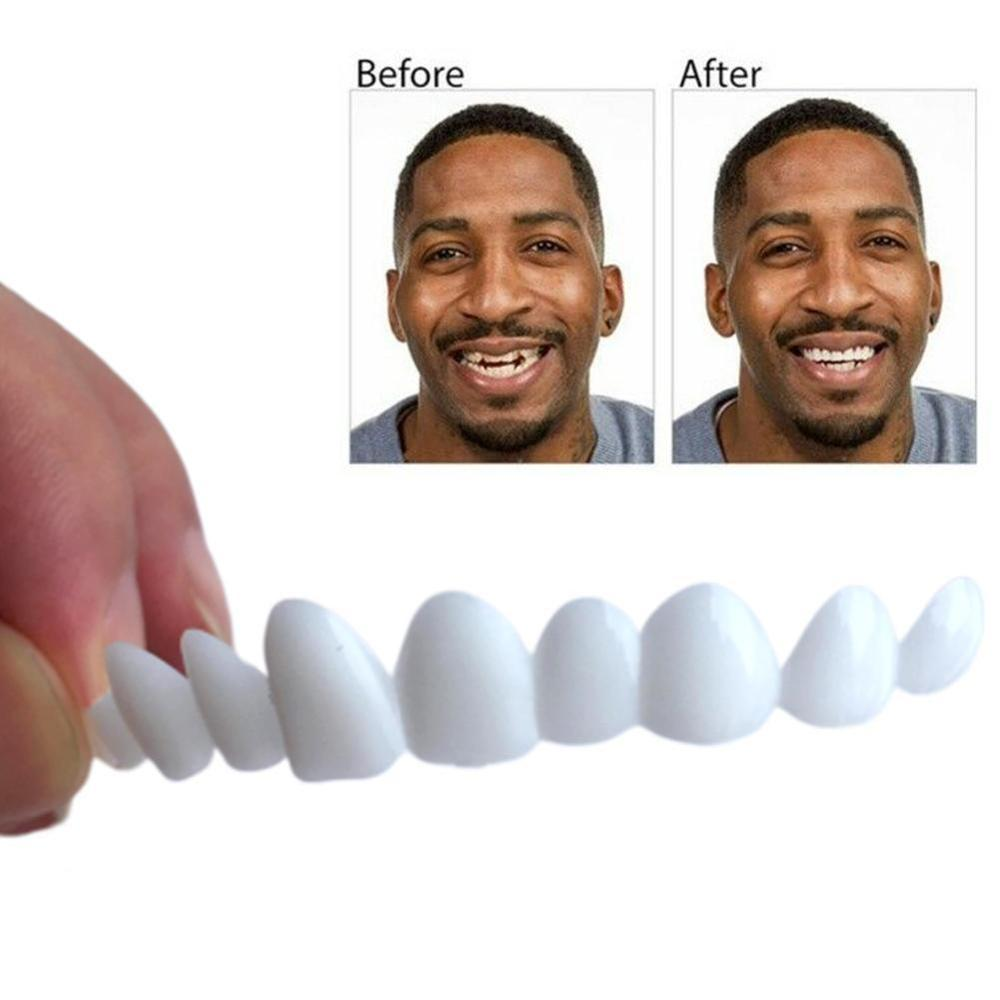 Instant Smile Teeth Replacement Kit Easy Temporary Tooth Fix Multi Shade Sets With 3 Pcs Simulated Dental Braces 1 Teether