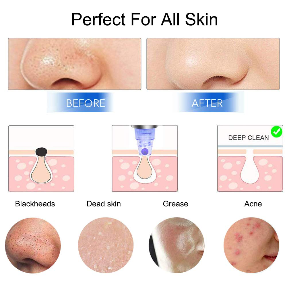 img_1_DIOZO-Blackhead-Remover-Pore-Acne-Pimple-Removal-Face-Deep-Nose-Cleaner-Vacuum-Suction-Facial-Diamond-Beauty