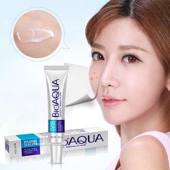 New Hot Bioaqua 30g Anti Acne Cream Oil Control Shrink Pore Acnes Scar Remove Face Care SMR88 1