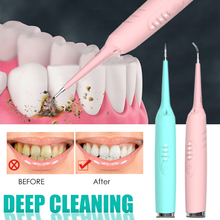 Электрическая звуковая Ирригатор для полости рта детали стоматологического аппарата для снятия зубного камня зуб расчеты средства для уда...