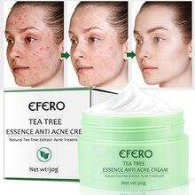 EFERO Acne Treatment Repair Cream Tea Tree Essence Anti Acne Scar Removal Pimple Blackhead Moisturizing Whitening Face Cream