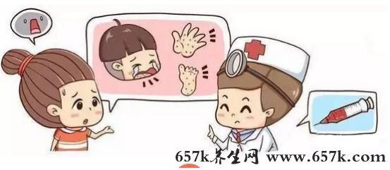 手足口病的症状 得了手足口严重吗