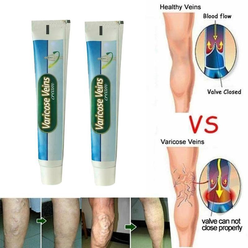 Varicose Veins Treatment Cream Vasculitis Phlebitis Angiitis Inflammation Blood Vessel Rotten Legs Spider Repair Ointment Useful