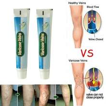 Crema para tratamiento de venas varicosas, vasolitis, Angiitis, inflamación, vasos arterial, piernas podacas, pomada de reparación de araña útil