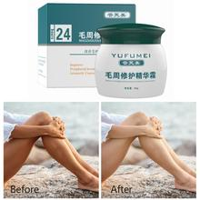50g Natural Formula Face Foliculitis Whole Body Skin Cream Care Keratosis Lotion