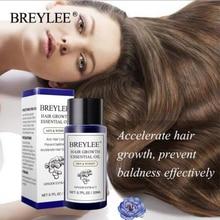 BREYLEE HairGrowthCareEssentialOilRepairsAndNourishesHair FolliclesToRestore HealthRapid Hair Growth And Prevent Hair Loss Care
