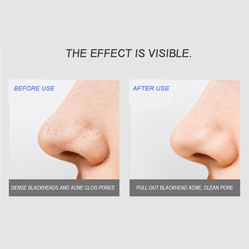 graxa acne remoção da pele poros cuidados