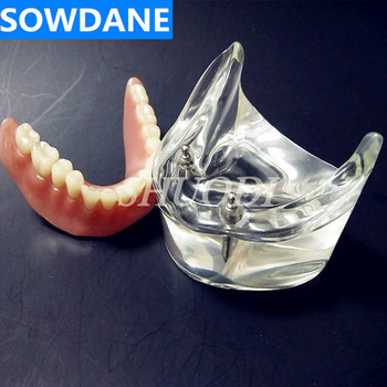 Clinic Decoration Dental Overdenture Interior Mandibular Lower with 2 Implant Restoration Teeth Study Teach Model lower jaw of adult dentition model teeth dental model