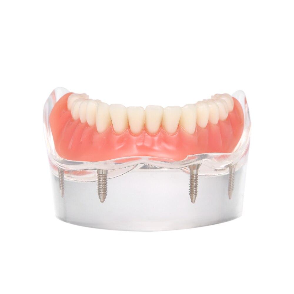 Modèle de dents inférieures intérieures de prothèse dentaire mandibulaire avec 4 dents de restauration d'implant modèle d'étude dentaire médical d'enseignement dentaire