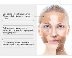 Image 3 - EFERO zielona herbata niezbędne Serum pielęgnacja twarzy skóry leczenie trądziku zaskórnika Remover Anti blizna plamy nawilżający niezbędne esencja