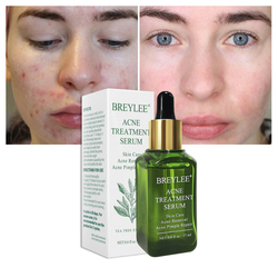 Natural Acne Treatment Serum Facial Essence Professional Anti Acne Scar Removal Cream Beauty Makeup Skin Care Cosmetics TSLM2