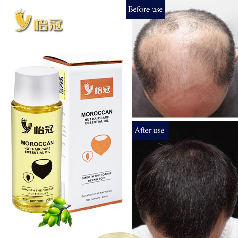 20ml Hair Oil Fast Hair Growth Essence Human Baldness Natural Herbal Powerful Hair Growth Treatment Fluid Anti Hair Loss