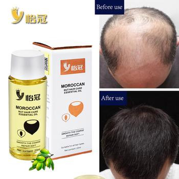 20ml olejek do włosów esencja na szybki porost włosów łysienie ludzkie naturalne ziołowe potężny wzrost włosów leczenie płyn anty utrata włosów tanie i dobre opinie LAIKOU Moroccan Pure Argan Oil 1bottle Leczenie włosów i skóry głowy
