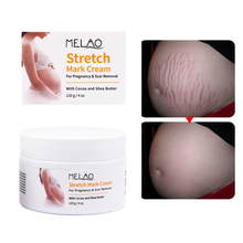120g Maternity Stretch Marks And Scar Skin Body Repair Remove Scar Care Cream Pregnancy Cream Anti-Aging Anti Winkles
