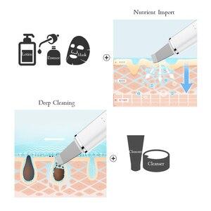 Image 2 - Глубокий аппарат для чистки лица ультразвуковой ионный скребок для кожи EMS пилинг лопатка очиститель пор лица