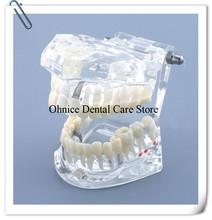 Dental Tooth Model with mariland bridge Dental caries teeth Model Implant and Restoration Model M2001 teaching model cheap hooky Acrylic