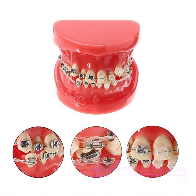 NSKLED Dental Orthodontic Model Half Ceramic Half Metal Bracket With Anti-nail For Medical Science Disease Teaching Study Dental