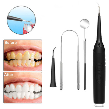 Electric Dental Calculus Remover Oral Irrigator Teeth Whitening Cleaner Dental Scaler Tooth Stain Tartar Scraper Oral Hygiene portable electric sonic dental scaler tooth calculus remover tooth whitening oral hygiene tartar tool health oral cleaner