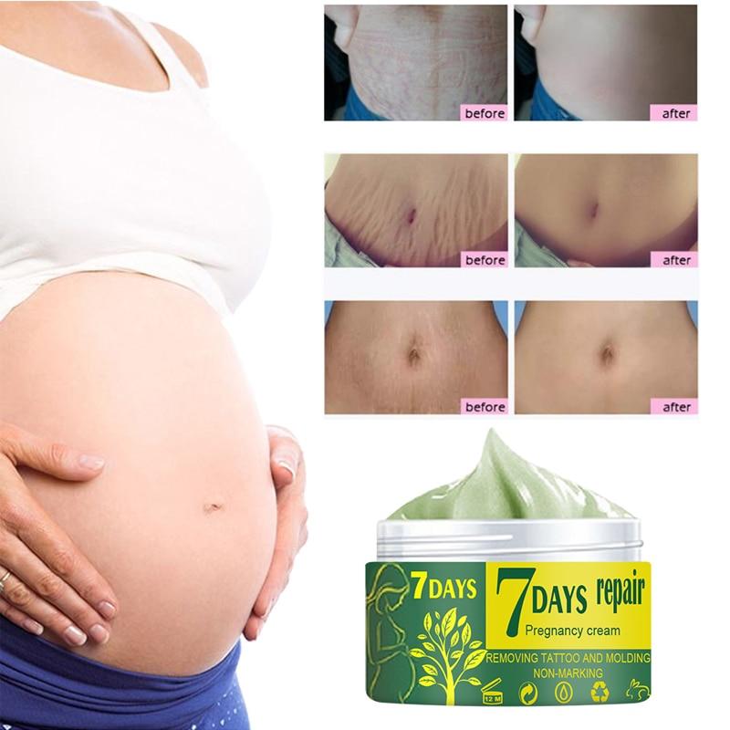 Segni di gravidanza che riparano la crema per il corpo smagliature crema per la rimozione della cicatrice dell'irritazione idratante rassodante lozione antirughe per la cura della pelle 3