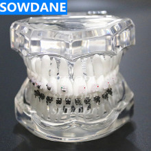 Dental Orthodontic Model Patients Communication 4 kinds Brackets with Ceramic Self Ligating Bracket Metal