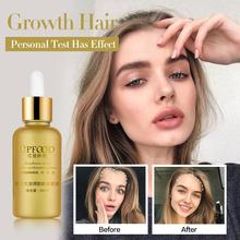 Hair Growth Essence Oil Anti Hair Loss Treatment for Hair Growth Beauty Dense Hair Care Products Hair Growth Serum cheap 20160671 Hair Loss Product for Hair Growth Essence Oil yfy08 1 Bottle 30ml