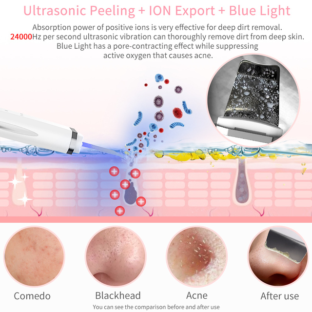 ANLAN Ultrasonic Skin Scrubber Ion Face Cleaning Shovel Peeling Facial Lifting Machine Acne Blackhead Removal Red Light Therapy 2