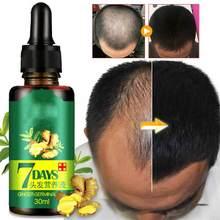 7 dni esencja na szybki porost włosów olej do włosów Ginger Serum wzrostu odżywczy zmiękczyć leczenie utrata włosów naprawy zniszczone włosy 10/30ML