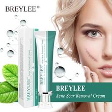 BREYLEE удаление крем от морщин лицо прыщи шрам удаление растяжек лечение от прыщей, отбеливание увлажняющий крем
