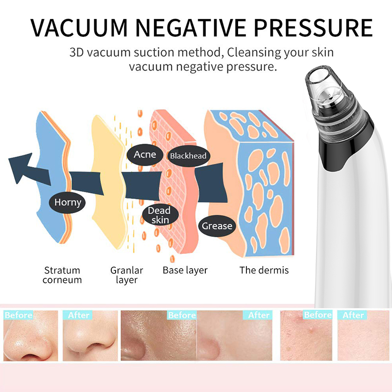 Clearance SaleANLAN Removal Pimple Sucker Acne-Extractor Blackhead-Remover Deep-Pore-Cleaner Vacuum-Suction