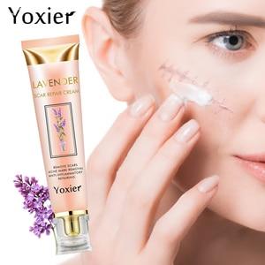 Image 1 - Yoxier Acne Scar Stretch Marks Remover Cream Repair Face Cream Acne Spots Acne Treatment Blackhead Whitening Cream Skin Care