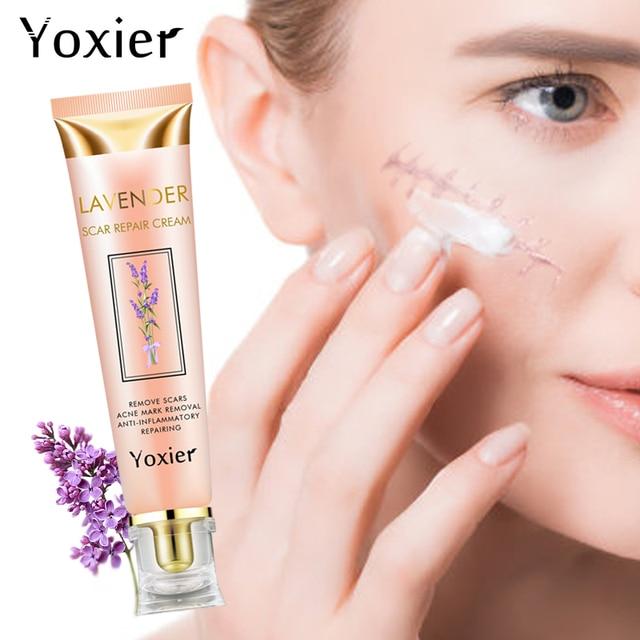 Yoxier Acne Scar Stretch Marks Remover Cream Repair Face Cream Acne Spots Acne Treatment Blackhead Whitening Cream Skin Care