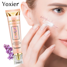 Yoxier crème éclaircissante pour le visage, dissolvant les cicatrices dacné et les vergetures, réparation des taches dacné, traitement des points noirs, soins pour la peau