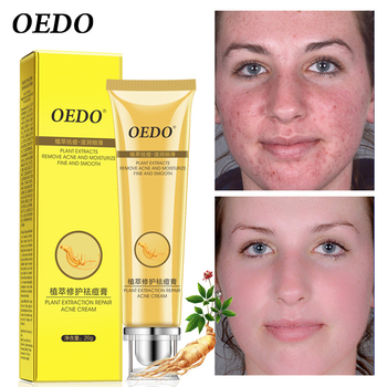 OEDO Ginseng Repair Acne Cream Plant Oil Control Acne Shrinking Pore Gel Skin Care Moisturizing Whitening Facial Treatment rose soap 100% natural handmade 120g hair skin beauty whitening moisturizing cleaner antibacterial acne treatment