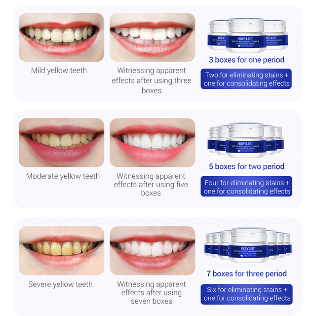 BREYLEE Teeth Whitening Powder  Cleaning Hygiene Bleaching Dental Toothpaste Tools Remove Plaque Stains Oral Teeth Care White30g