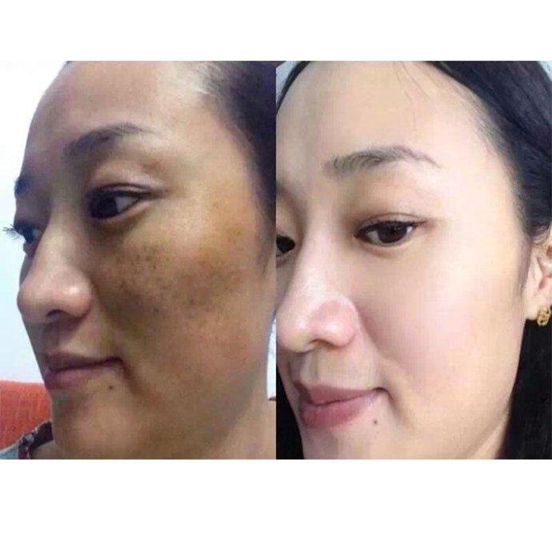 Gluta 1500000 Ultra Strong Whitening Glutathione White Anti Aging 30pcs
