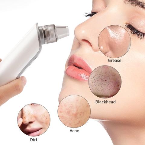poros vacuo acne espinha remocao rosto poro